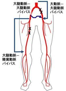下肢のASOのとき、下肢動脈を手術で再建する方法をいくつか示します。手術はカテーテル治療では治しづらい状態のとき、威力を発揮し、効果が長持ちしやすいです