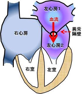 三心房心の一例です。これに心房中隔欠損症その他が合併することもよくあります