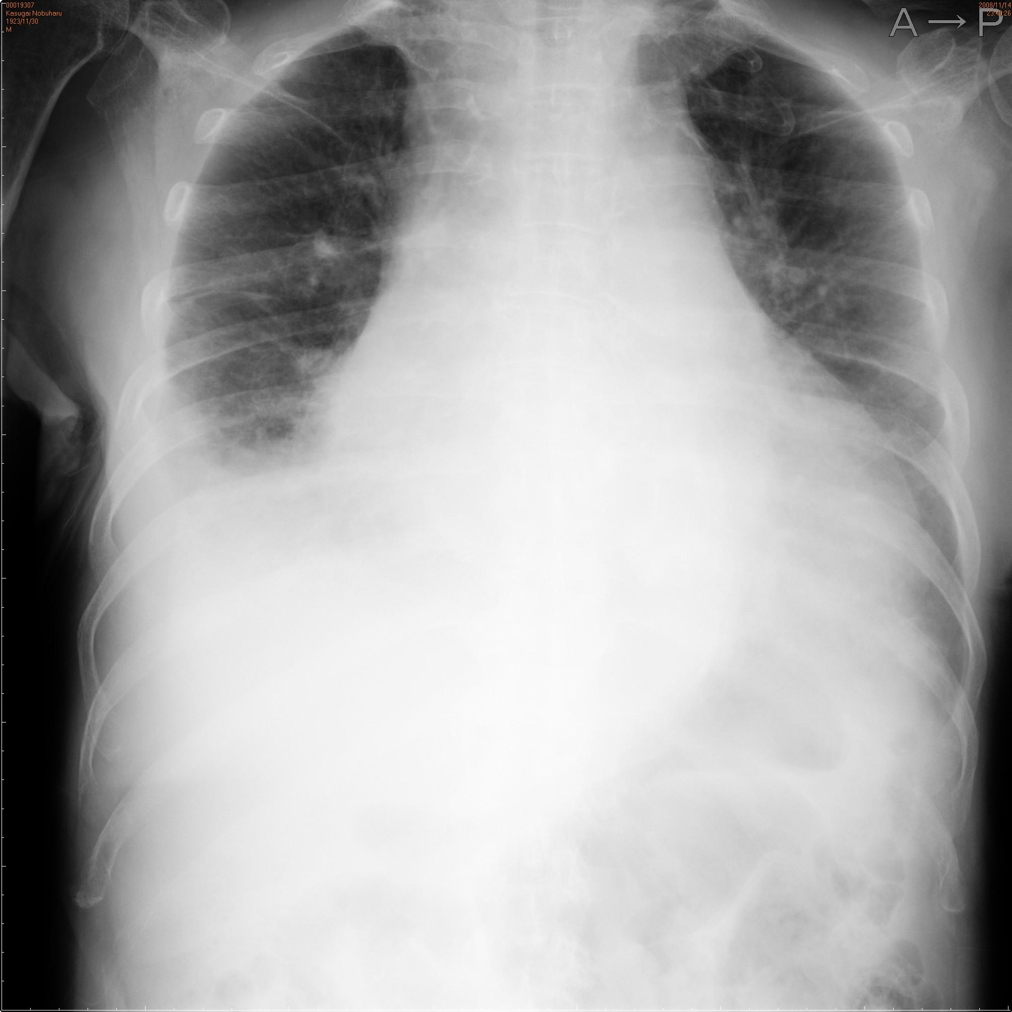 肺 うっ血 レントゲン