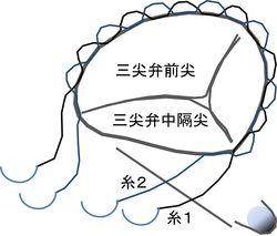 DeVega法による三尖弁輪形成術