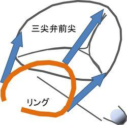 リングによる三尖弁輪形成術