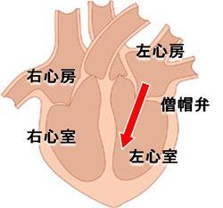 僧帽弁狭窄症では左心房圧が高くなり左心房が拡張します。(AllAboutより引用)
