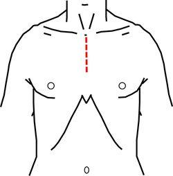 胸骨部分切開によるMICS