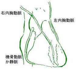 図 CABG