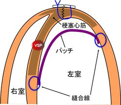 VSP original Komeda-David operation