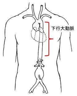 D-Aorta