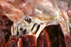 Rheumatic valvulitis gross