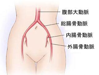 Iliac artery