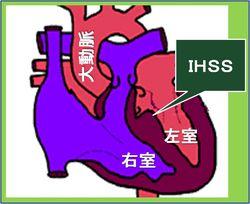 IHSSの模式図です。心室中隔の一部が出っ張っています