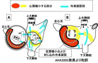 心房縮小メイズの展開図