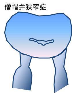 僧帽弁狭窄症
