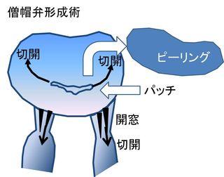 僧帽弁形成術2