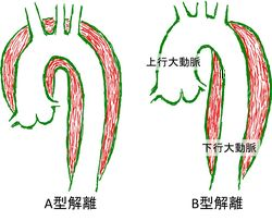 Aortic Dissect