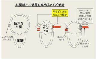 図 心房縮小メイズの方法