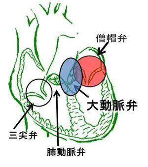 大動脈弁2