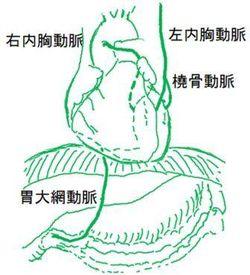 図 CABG-GEA