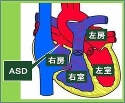 図1ASD日本語