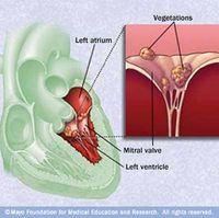 心内膜炎endocarditis_cause[1]