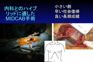 MIDCAB手術の創