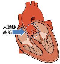 大動脈基部