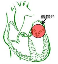 図 僧帽弁の位置