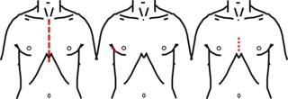 現在の大動脈弁ミックス