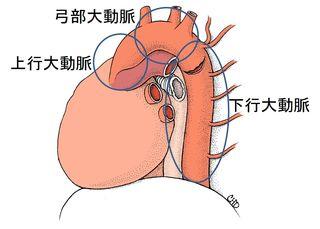 胸部大動脈分類