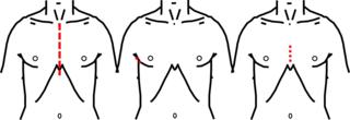 MICS大動脈弁