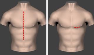 通常のバイパス手術とMIDCAB