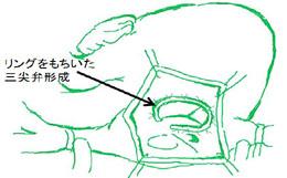 三尖弁輪縫縮術(三尖弁輪形成術)の一例を示します