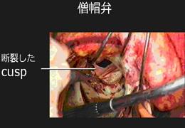 再手術のときの所見。昔植え込まれた生体弁が長年の疲れで破れて逆流を起こしていました