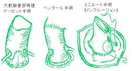 大動脈基部再建の方法です。患者さん自身の弁を温存するか、生体弁をうまく使うことでワーファリンなしの生活を確保できます