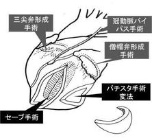 虚血性心筋症・虚血性僧帽弁閉鎖不全症に対する複合手術。海外のジャーナルにも掲載され当時の新聞でも報道されました。