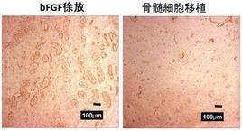 bFGF徐放を用いるとサイズの大きな血管が作れます。これによって血のめぐりはかなり改善します