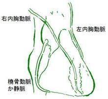冠動脈バイパス手術のできあがりの一例。内胸動脈は動脈硬化を防ぐホルモンを作るため心臓の冠動脈よりも硬化しにくいためバイパス手術のあとは長持ちしやすくなります