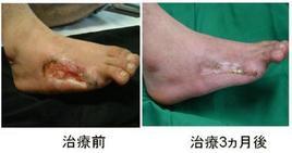 bFGF徐放の再生医療にてASO患者さんの足が治りました