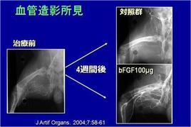 動物実験のデータ。bFGF徐放は多数の血管を作ることで血のめぐりを改善します。写真で一目でわかるほどの効果があります。