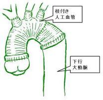 ステップワイズ法で行う弓部大動脈全置換術のシェーマです