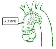 典型的な大動脈解離の手術後の姿です。近位弓部大動脈置換術(ヘミーアーチ置換)とよびます