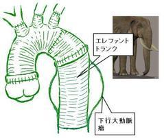弓部大動脈全置換術にエレファントトランクを加えるとこうなります