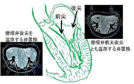 僧帽弁置換術といえども、乳頭筋などを温存すれば、心臓の力は保てます