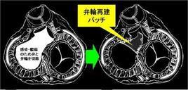 大動脈基部から僧帽弁輪にかけて膿瘍(うみがたまること)ができた時に心臓を再建する方法