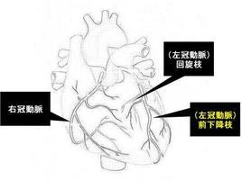 冠動脈の3つの系統を示します。3系統とも病気でやられている場合や左冠動脈の2系統の根本が狭くなっている場合は要注意です。