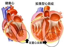 拡張型心筋症の左心室は単に大きく拡張するだけでなく、形が丸くなります。左心室にとって丸い形はパワーの上で不利であることが知られています