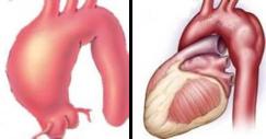 真性胸部大動脈瘤の例を2つ示します