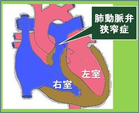 肺動脈弁の位置を示します。その肺動脈弁が狭くなると、右室に無理がかかり、二次的な問題も発生します