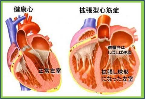 拡張型心筋症(右図)では健康心(左図)とくらべて丸く大きくなります。そのために心臓の力が落ちたり、僧帽弁が逆流して一層心不全が強くなったりします