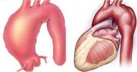 マルファン症候群では結合組織が弱いため血管も瘤(こぶのように大きくなります)になりやすいです