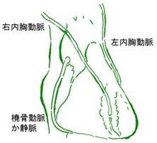 冠動脈バイパス手術は糖尿病の患者さんにはとくに有効です。それはバイパスに使う内胸動脈が糖尿病に負けにくいからです。