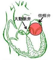 弁の位置を示します
